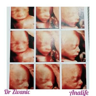 Pogledajte kako Vaša beba izgleda u toku trudnoće!