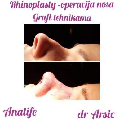 Najsavremenija operacija korekcije nosa (Rhinoplasty/Septorhinoplasty) Graft tehnikama.