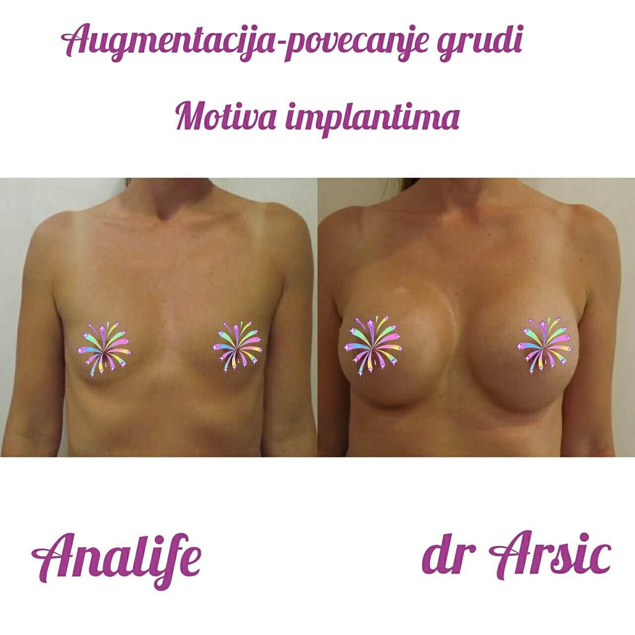 """Augmentacija (povećanje) grudi Motiva implantima (""""silikonima')"""