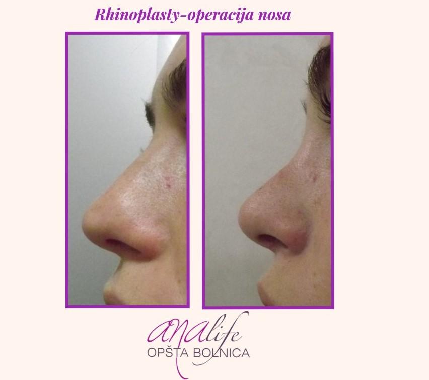 Operacija nosa