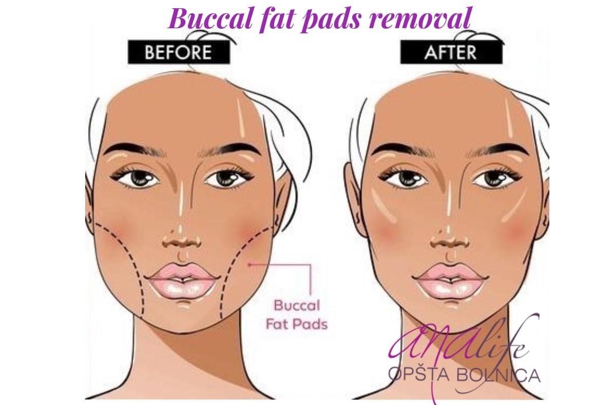 Šta je buccal fat removal?