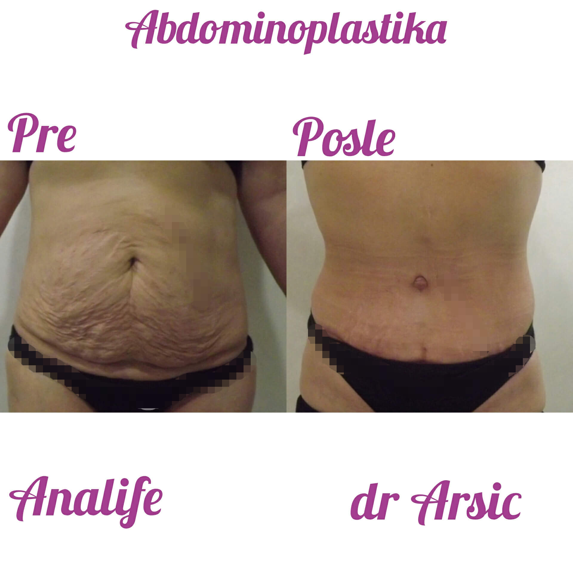 Dermolipektomija - abdominoplastika stomaka