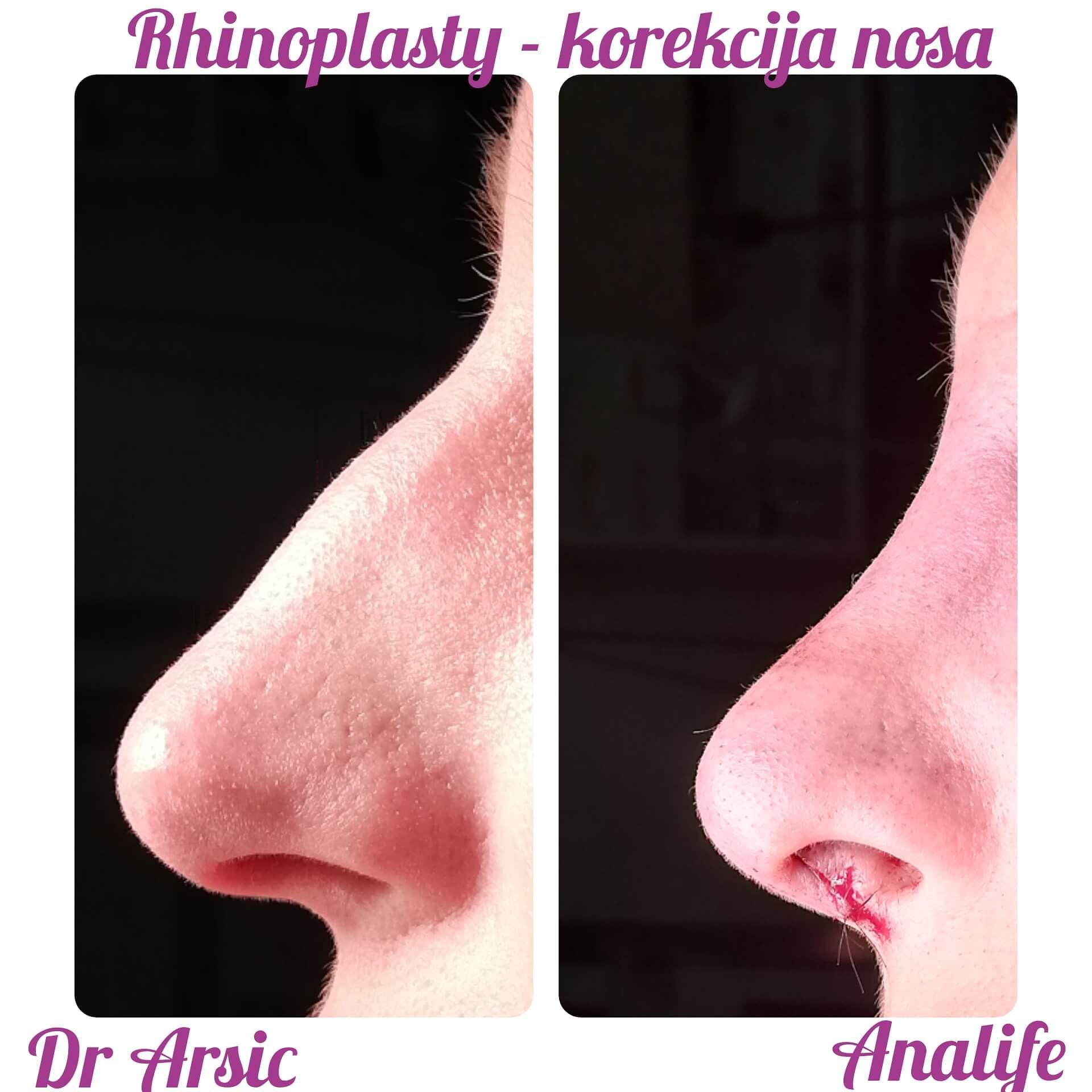 Estetska korekcija nosa je jedna od najzahtevnijih operacija jer se jasno uočava promena koja znatno doprinosi poboljšanju izgleda