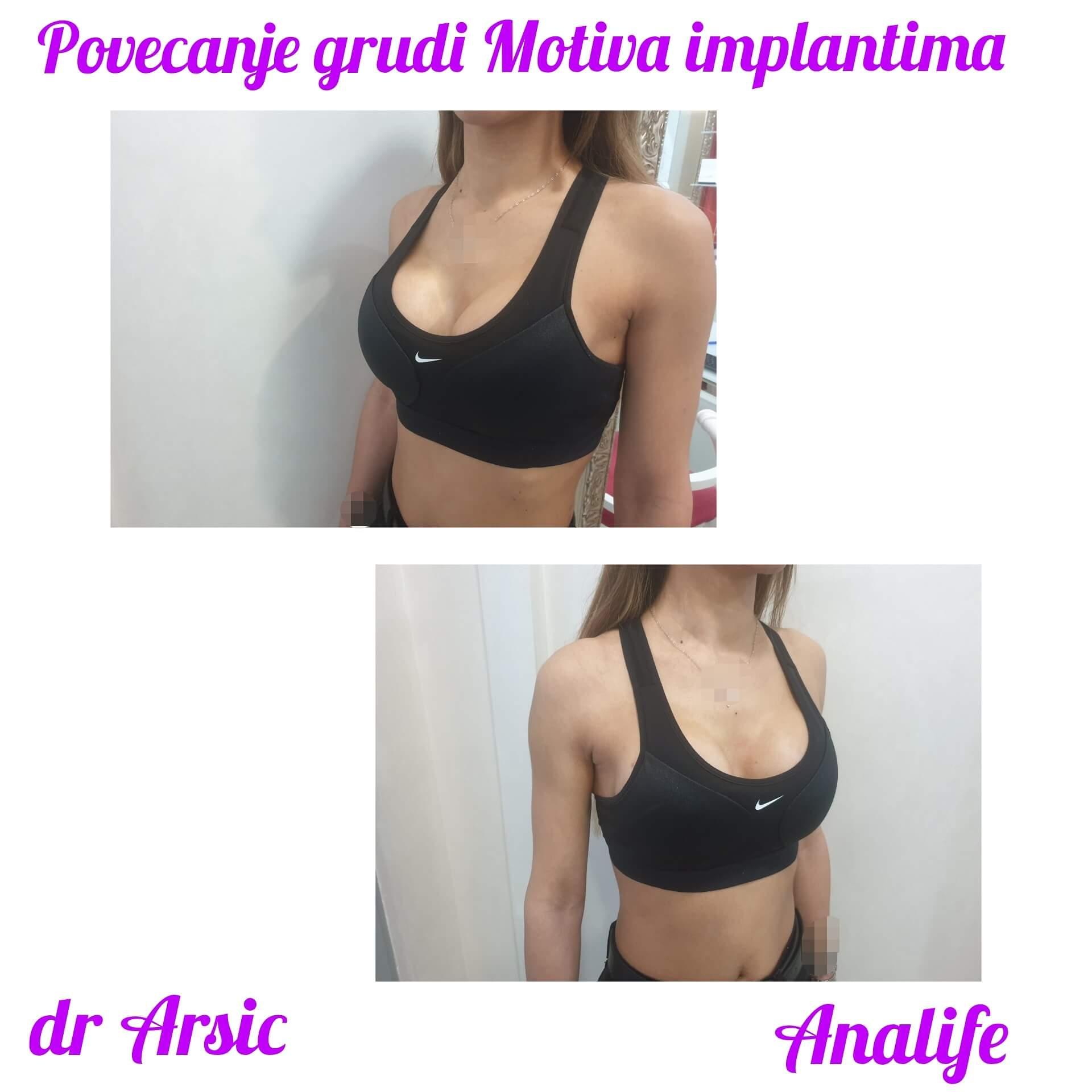 Nekada su žene krile svoje nedostatke....ali danas mogu zahvaljujući dr Arsiću, #Analife bolnici i savršenim #Motiva implantima da ih se reše zauvek!