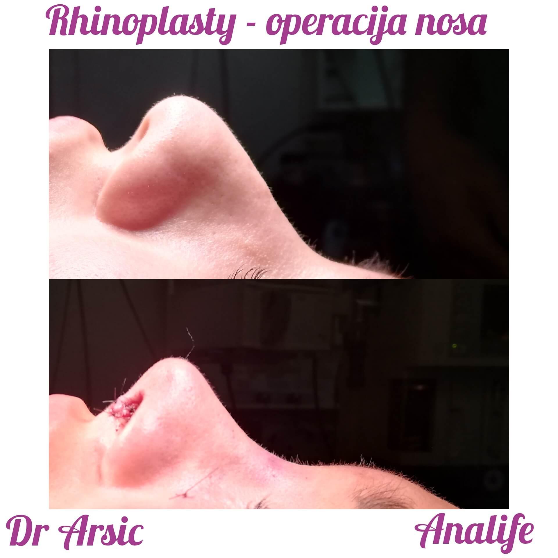 Operacija nosa u Analife bolnici