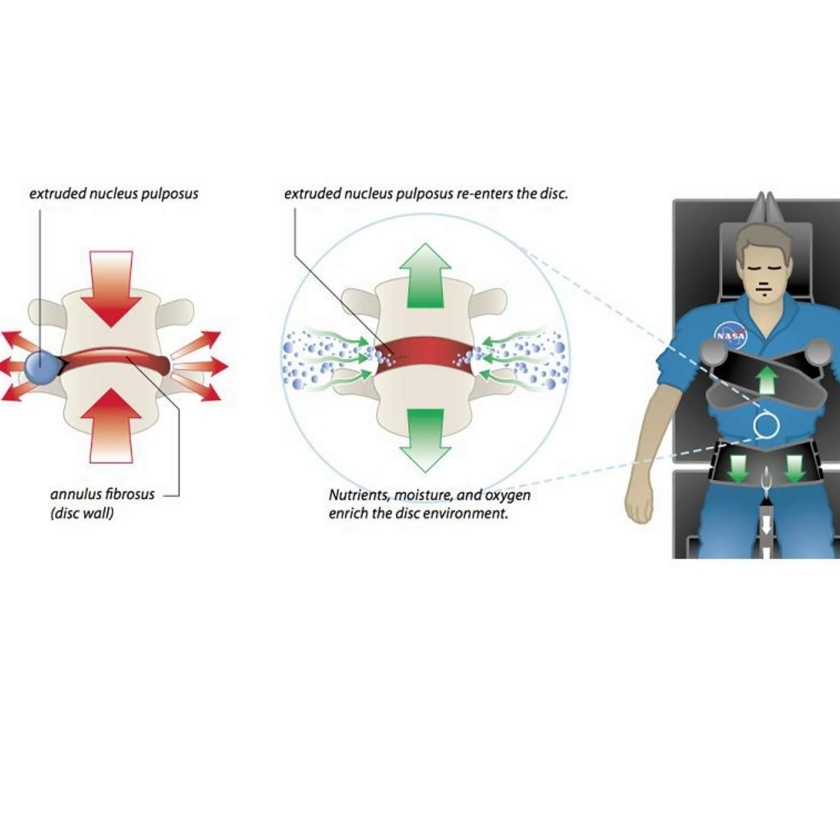 Šema kako deluje TRITON DTS dekompresija.