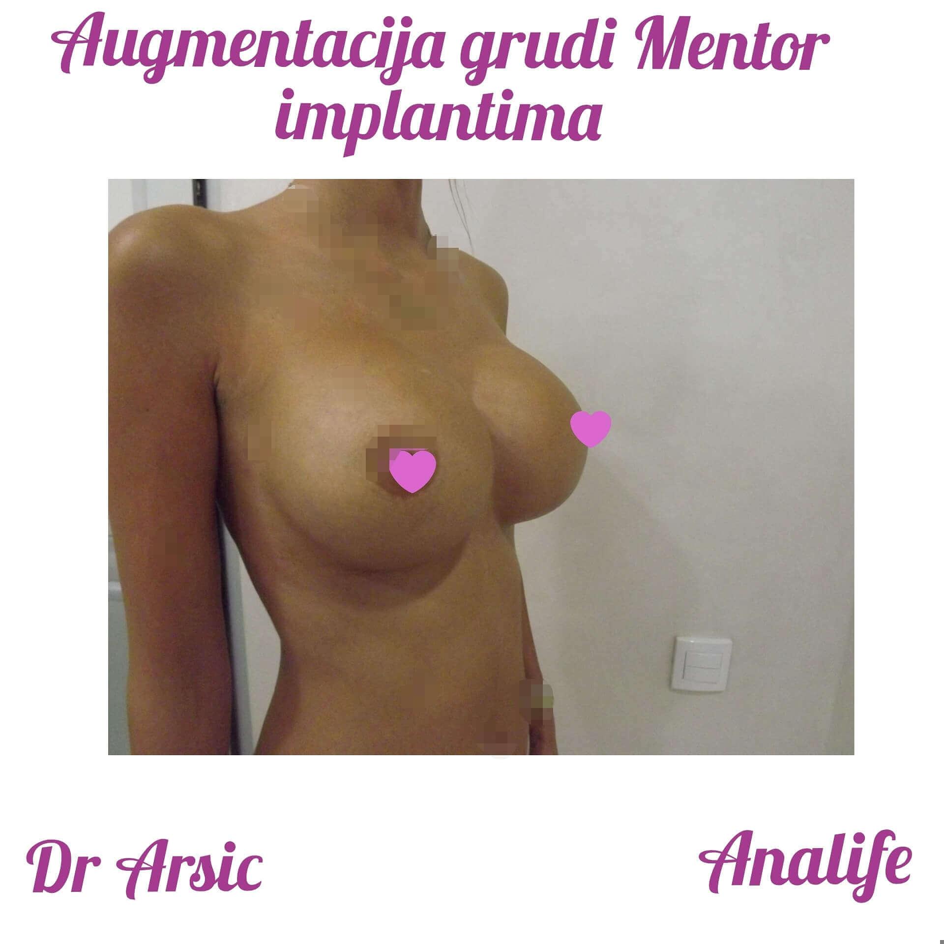 Augmentacija grudi - povećanje grudi implantima