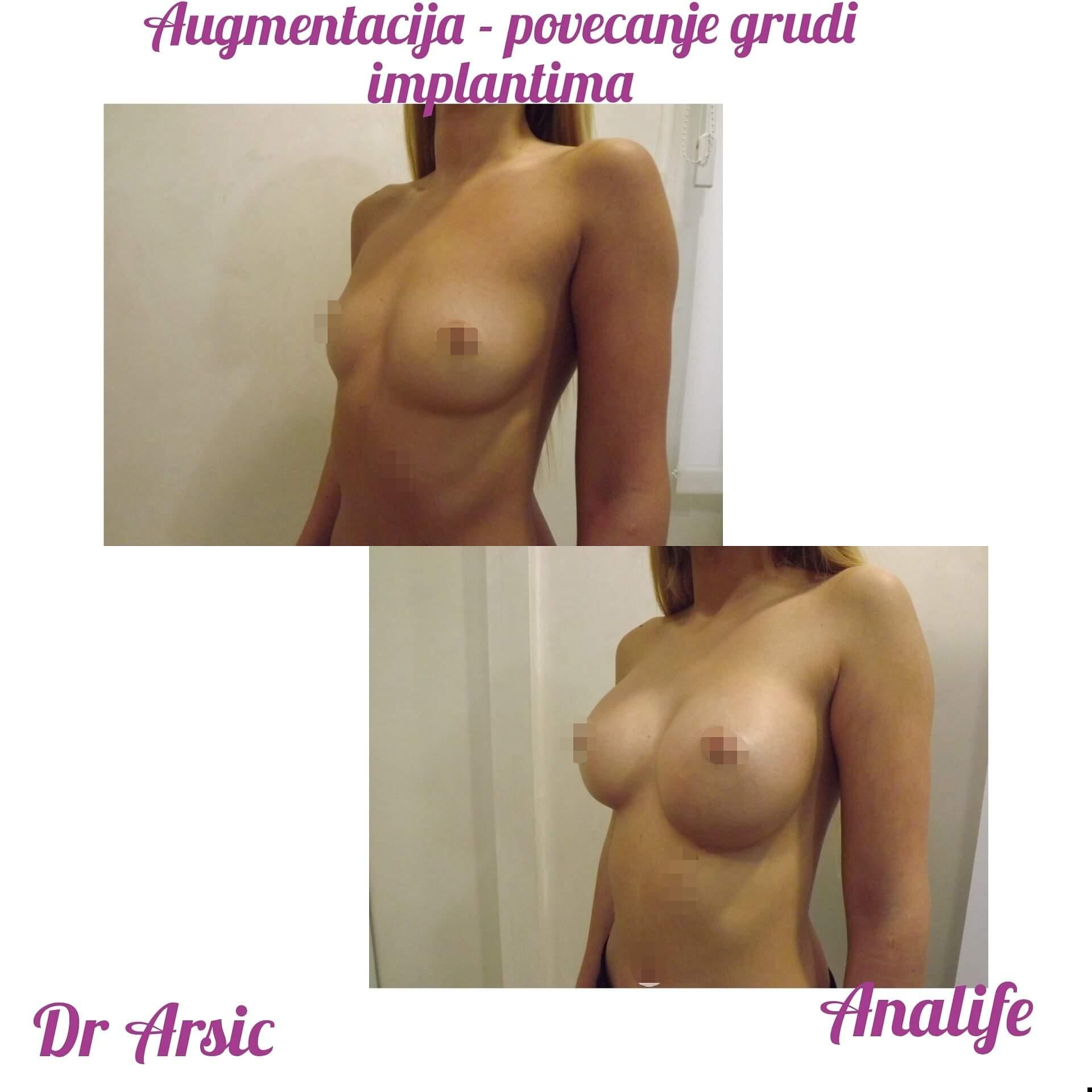 Augmentacija grudi