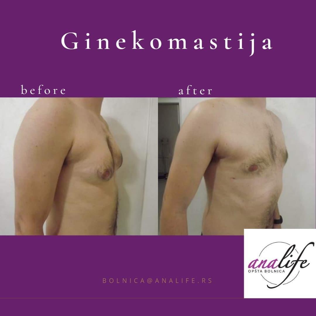 Ginekomastija - Promotivna cena od 950e Ko je kandidat za ovu vrstu operacije?