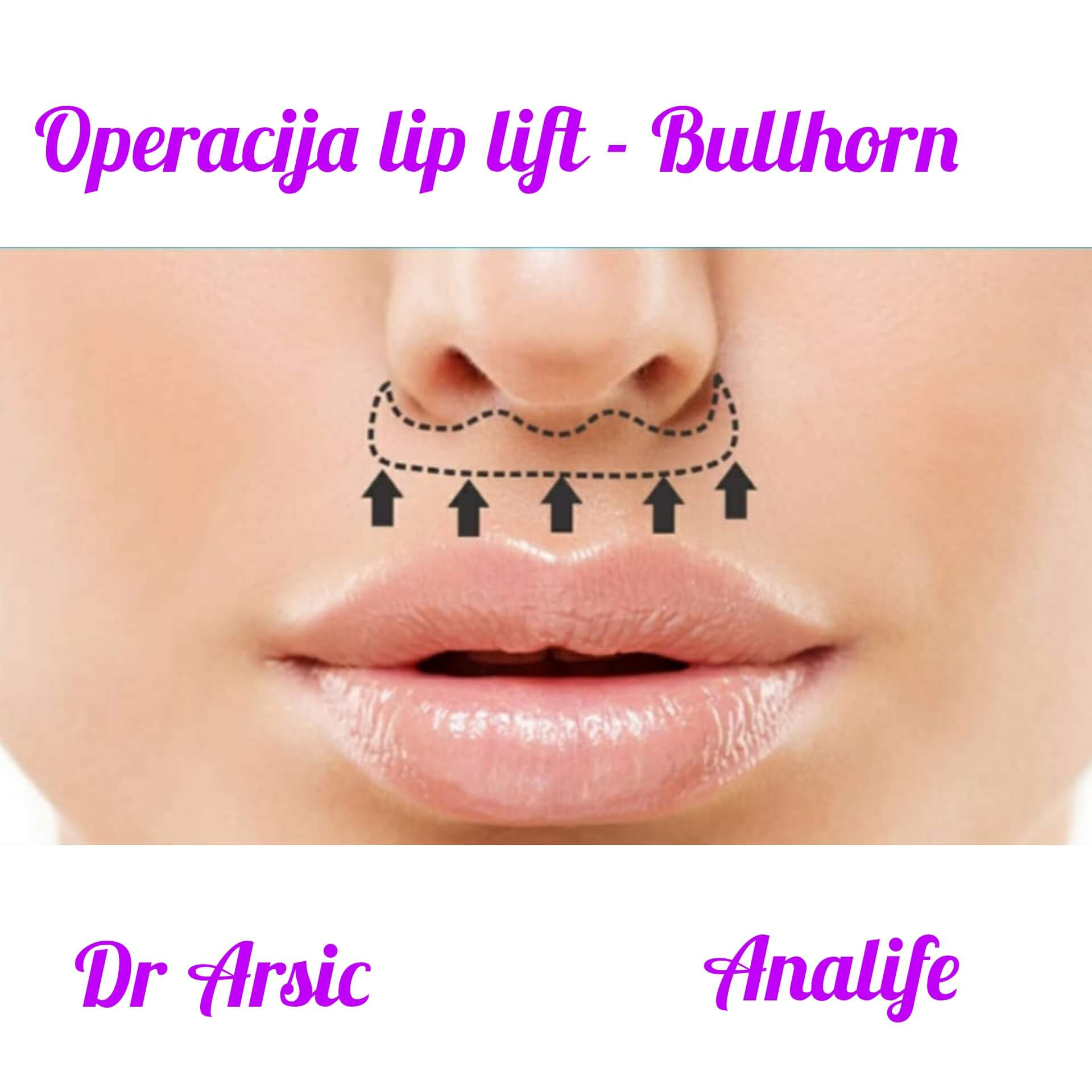 Lifting gornje usne