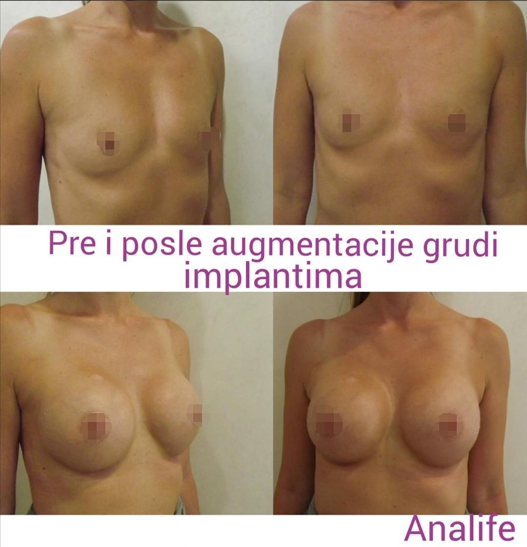 Mnoge žene se okreću ovoj metodi povećanja grudi