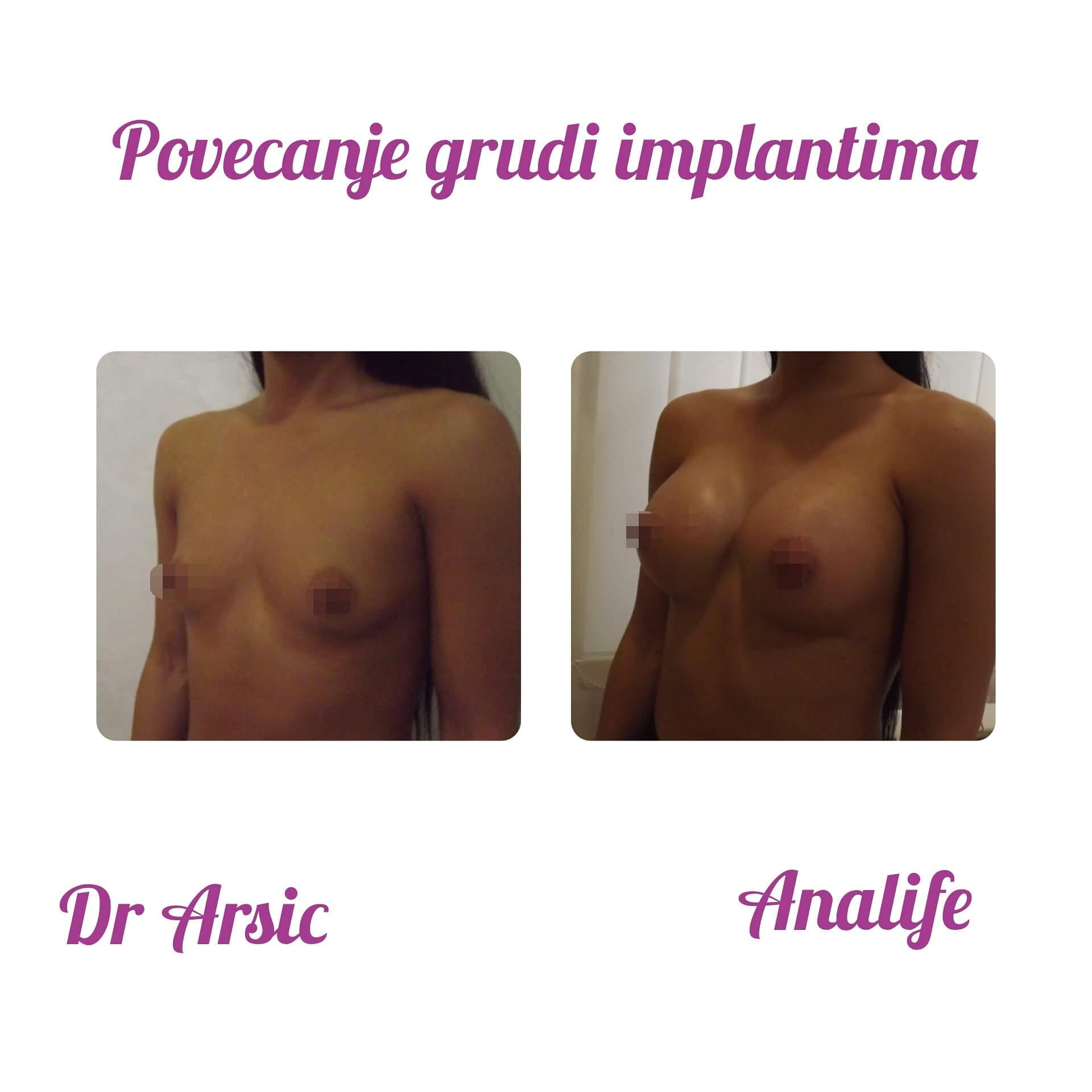 Neka Vaše grudi izgledaju savršeno, kao i Vi, uz Analife i dr Arsića!