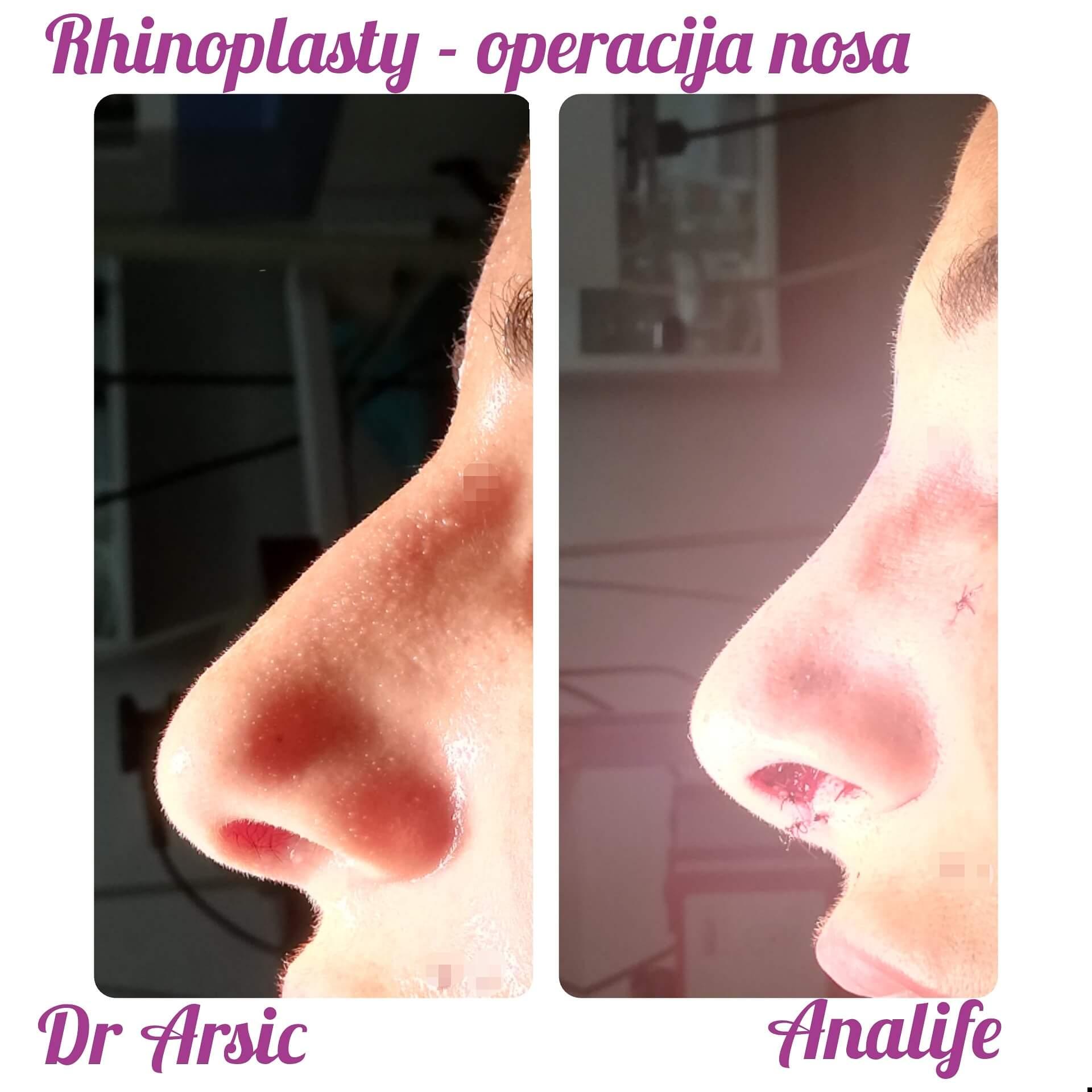 Neverovatno je koliko obična operacija nosa, može da izmeni izgled lica.