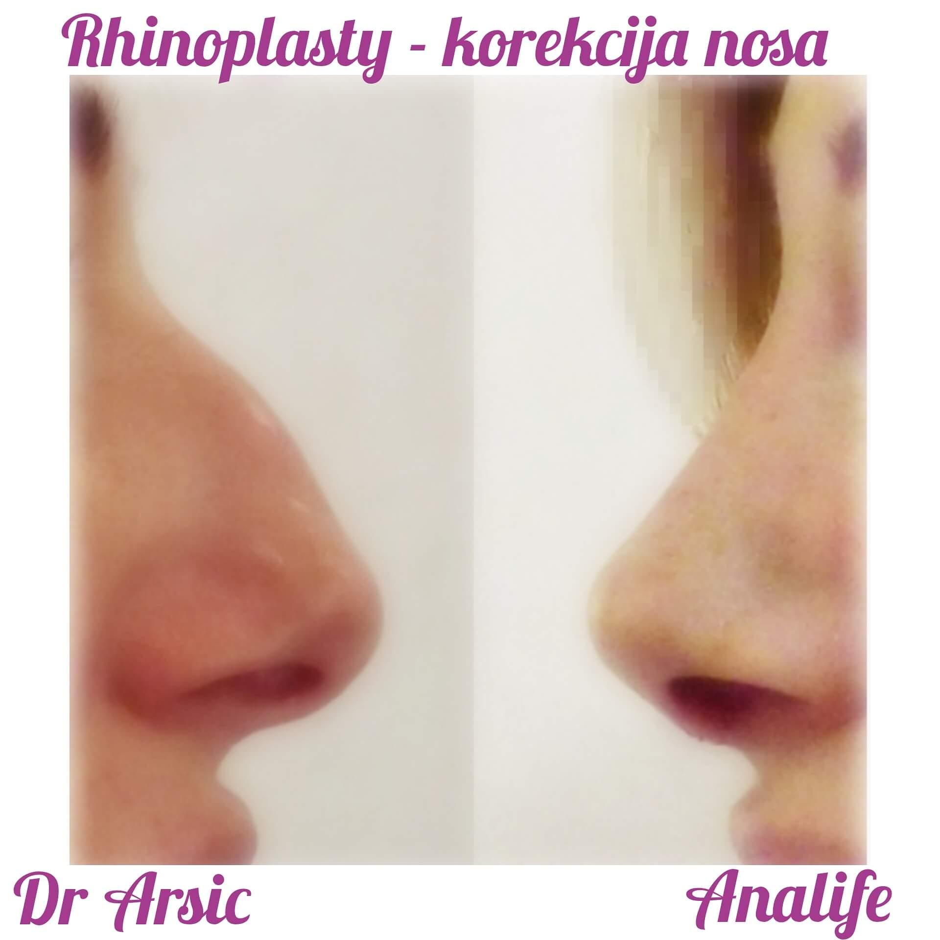 Operacija nosa ili korekcija nosa (Rinoplastika) je vrlo često i put do kompletnije i srećnije osobe