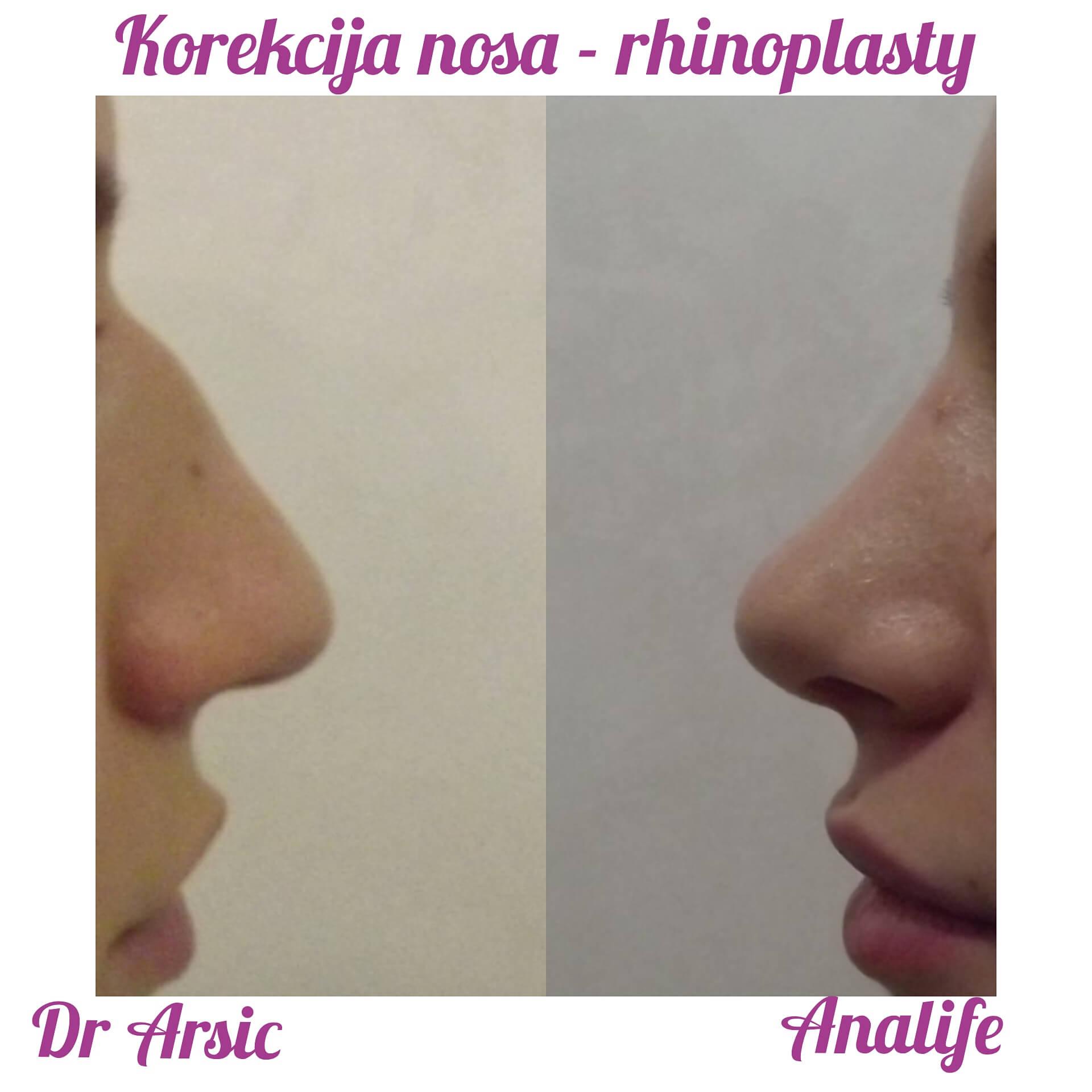 Operacija nosa jos uvek po promotivnoj ceni od 1950e