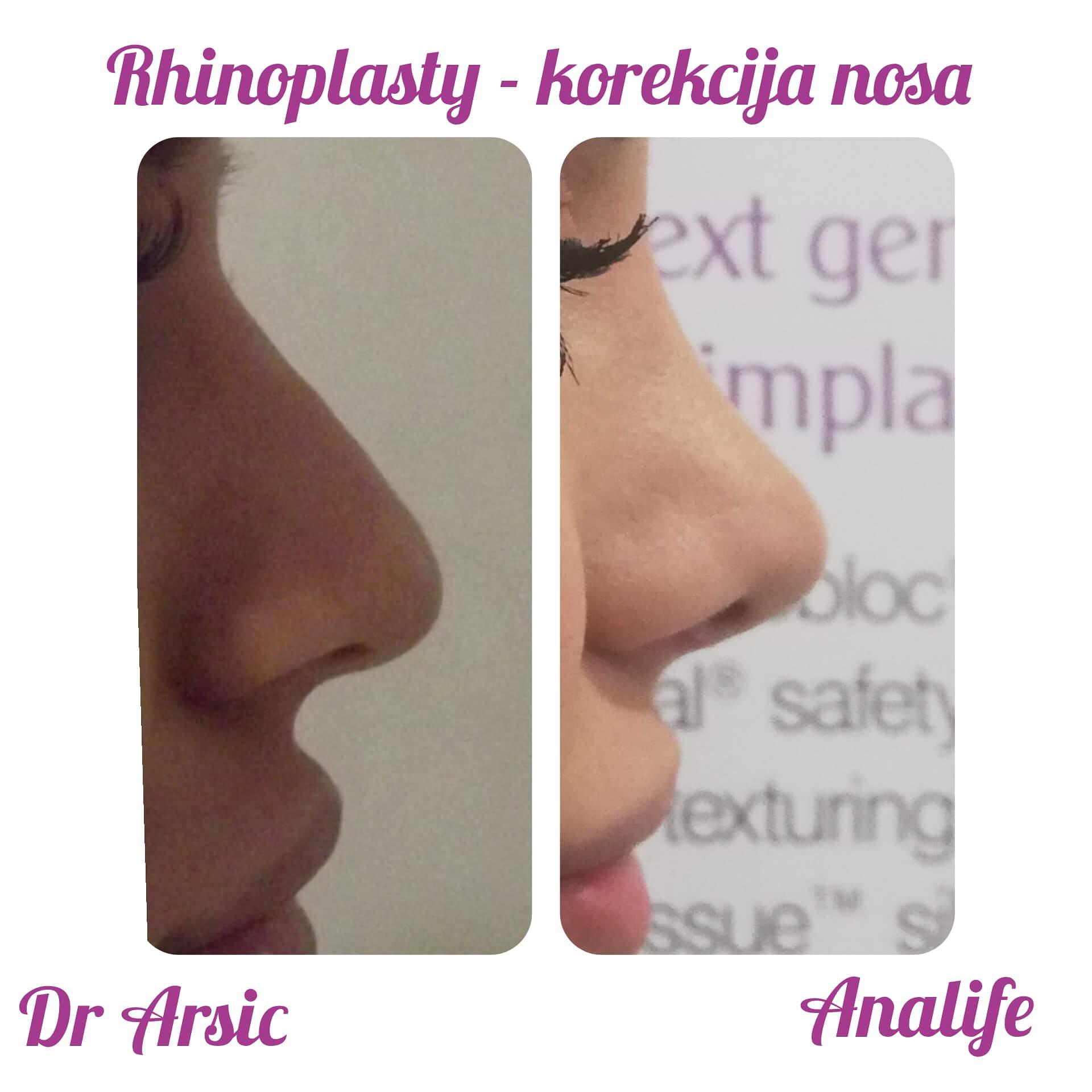 Rinoplastika je operacija kojom se menja izgled nosa