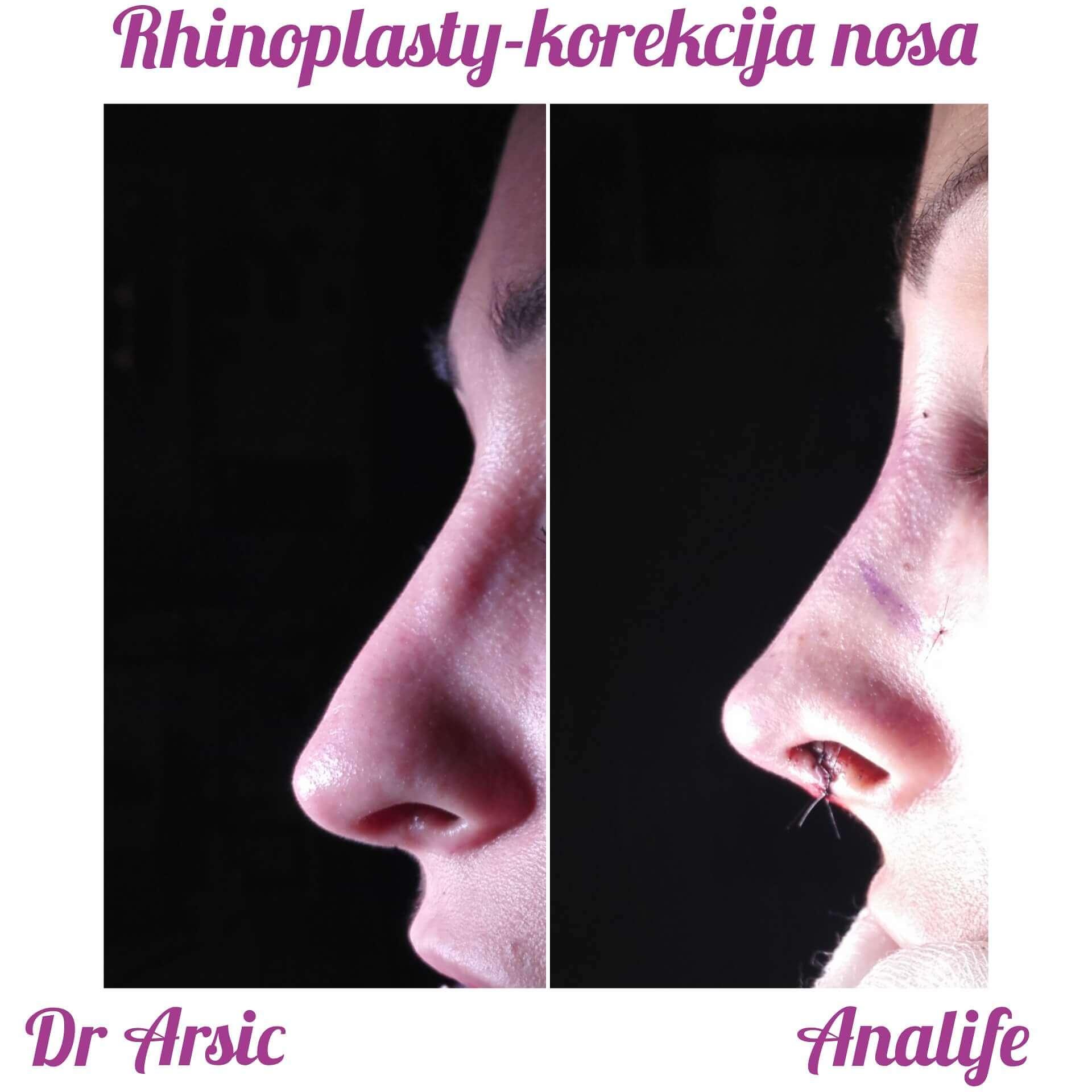 Rinoplastika - korekcija nosa