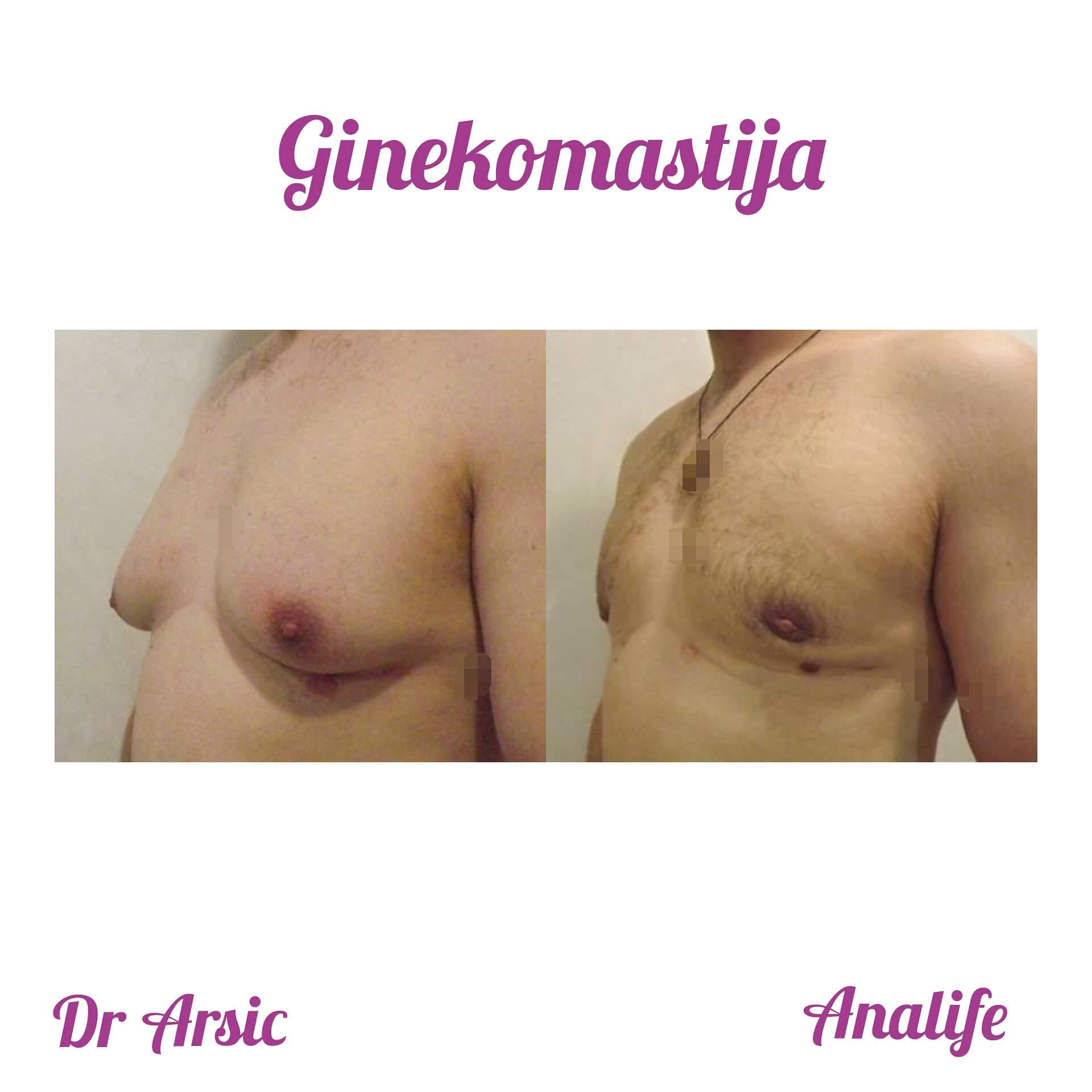 Samo u Analife bolnici promotivna cena ginekomastije - 1350e dve operacije po ceni jedne!