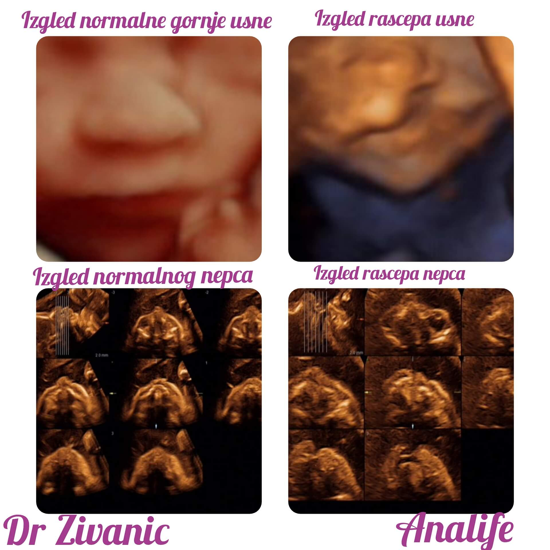 Šta ultrazvuk vidi, a testovi ne vide!
