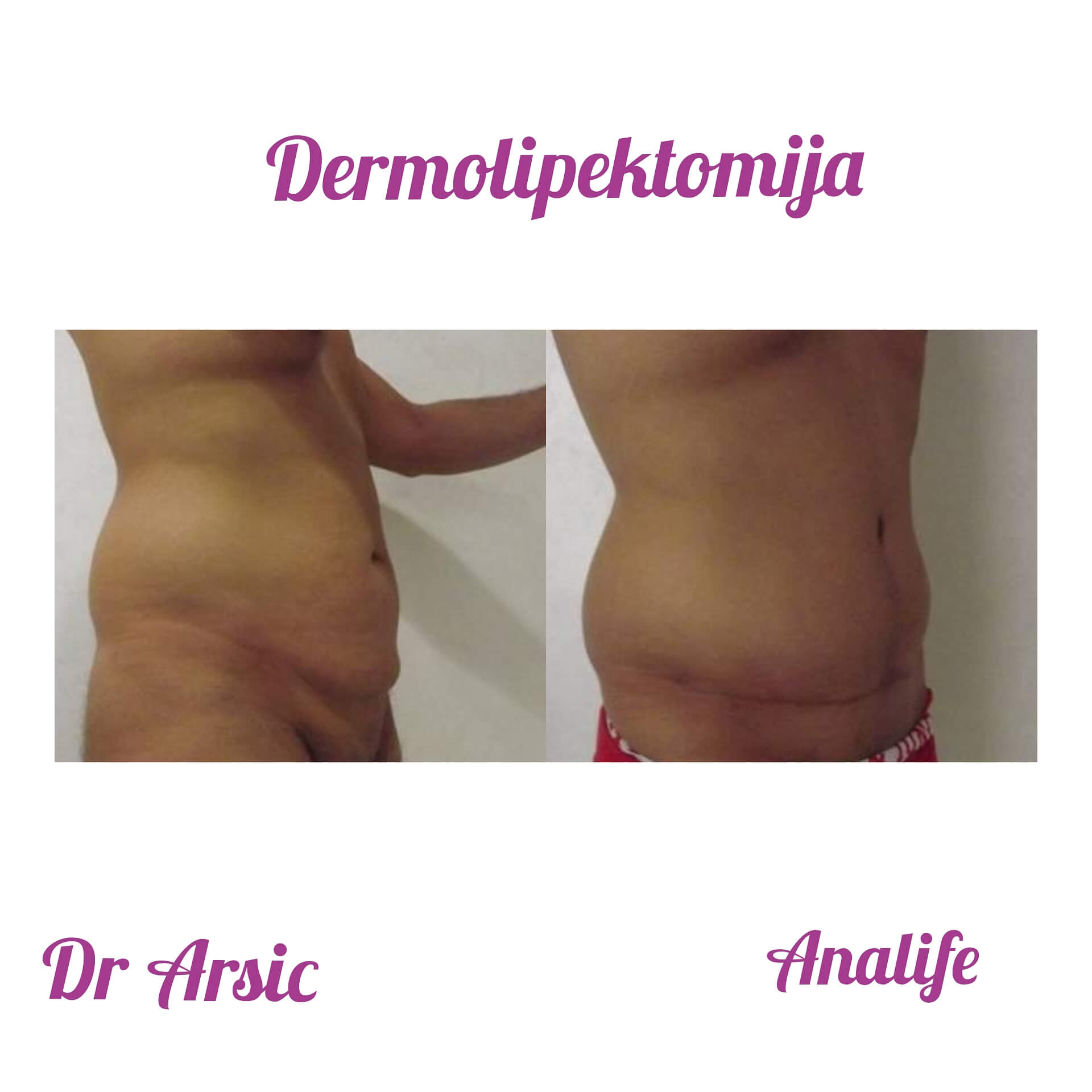 Dermolipektomija