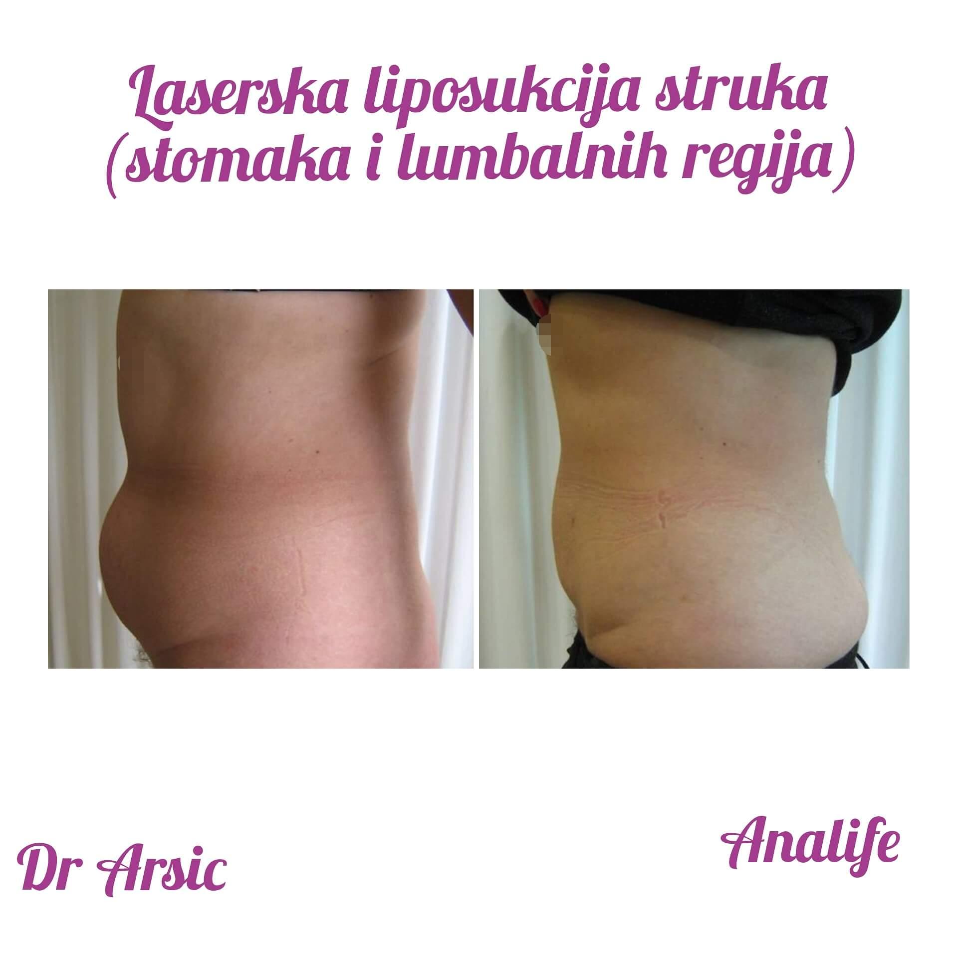 Laserska liposukcija - Brže vreme oporavka, dodatna sigurnost za pacijenta, superiorniji rezultati!