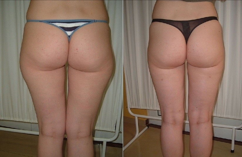 Laserska liposukcija ''Jahaćih pantalona''
