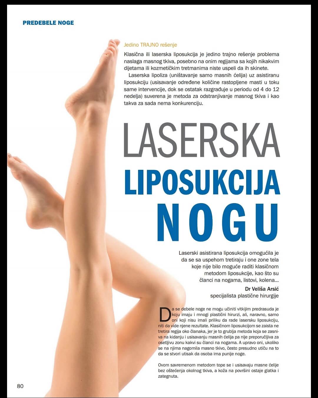 Laserska liposukcija nogu!