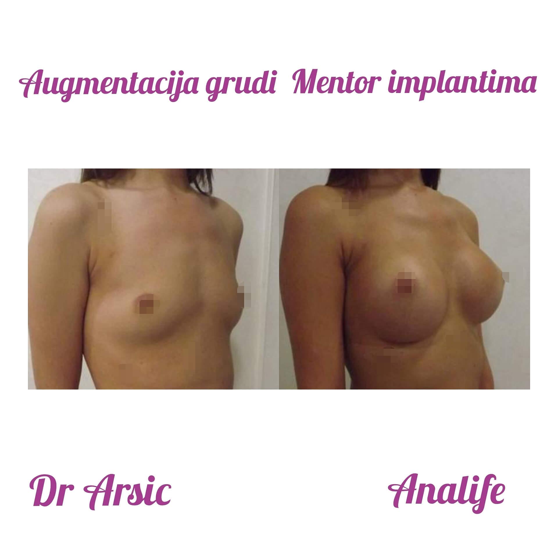 Povećanje grudi Mentor implantima