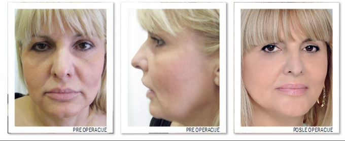 Promotivno Face Lift i Neck Lift!