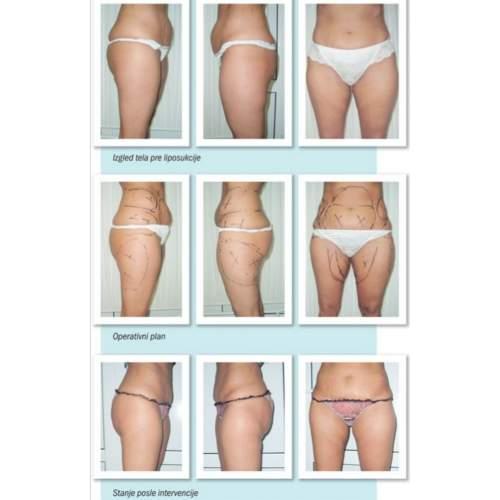 Rešite se masnog tkiva uz pomoć laserske liposukcije!
