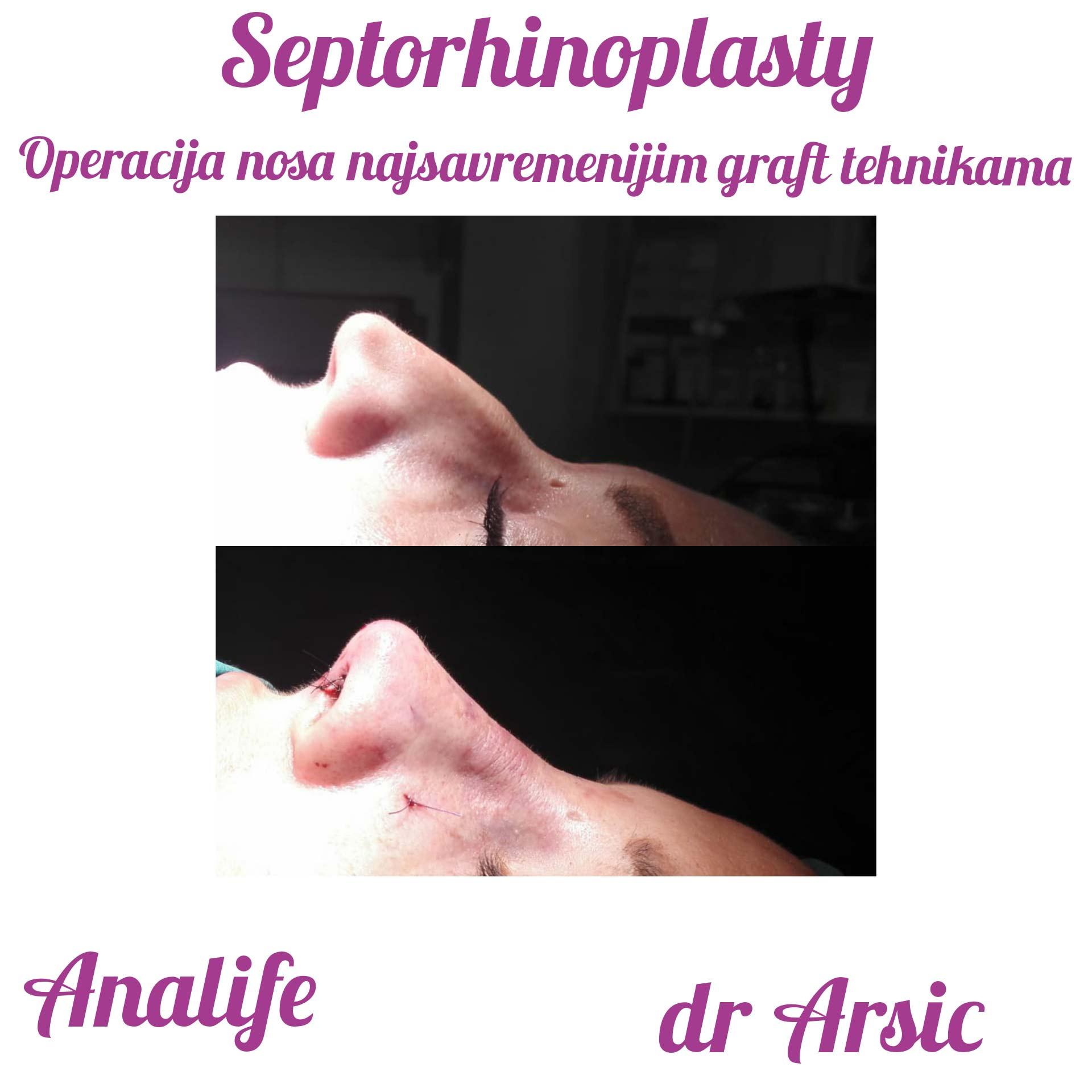 Operacije Nosa - Fantastican rezultat!