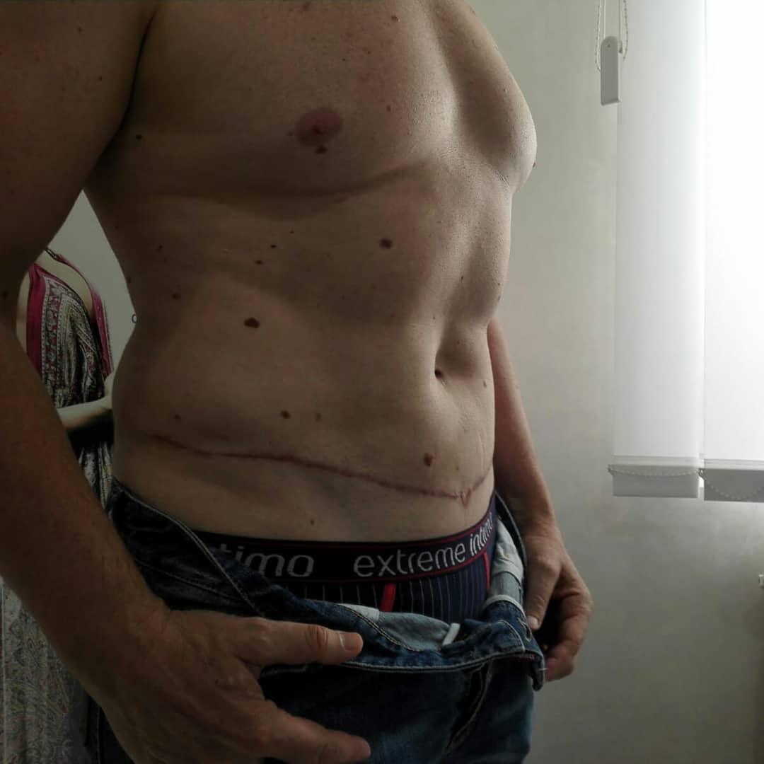 Abdominoplastika-operacija