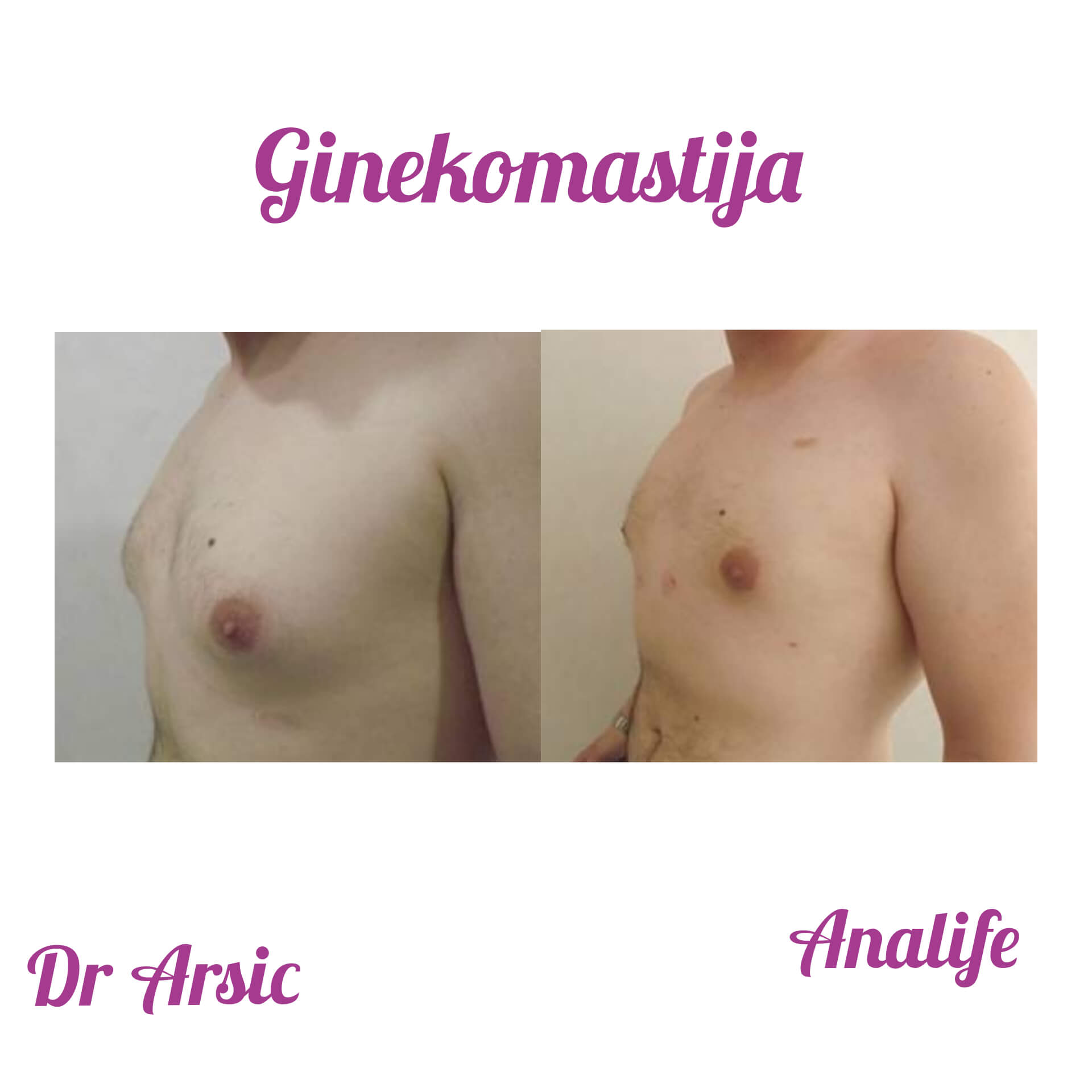 Ginekomastija - Ko je kandidat za ovu vrstu operacije?