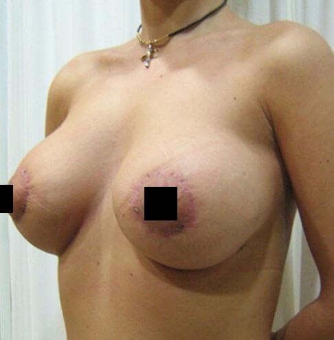 Bolnica analife plasticna hirurgija podizanje grudi