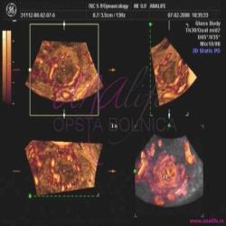 Ginekologija 3D ultrazvuk male karlice 1