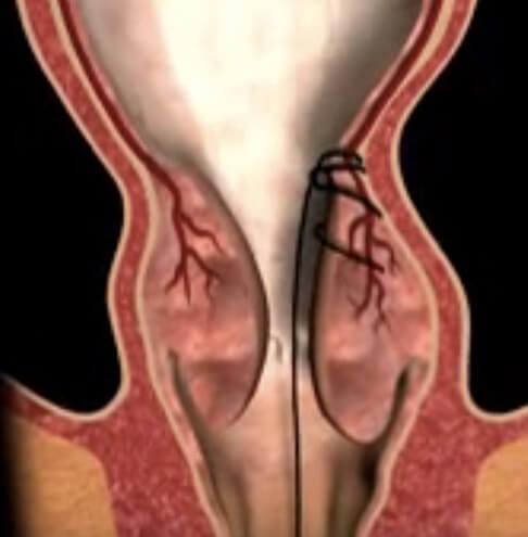 Hemoroidi fisure