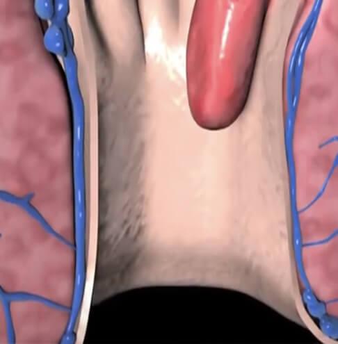 Hemoroidi klasična hemoroidektomija