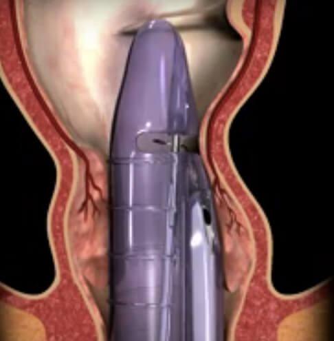 Hemoroidi thd hemoroidi