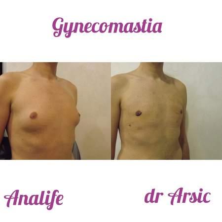 Plastična hirurgija ginekomastija