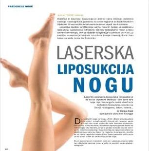 Plastična hirurgija laserska liposukcija nogu 2