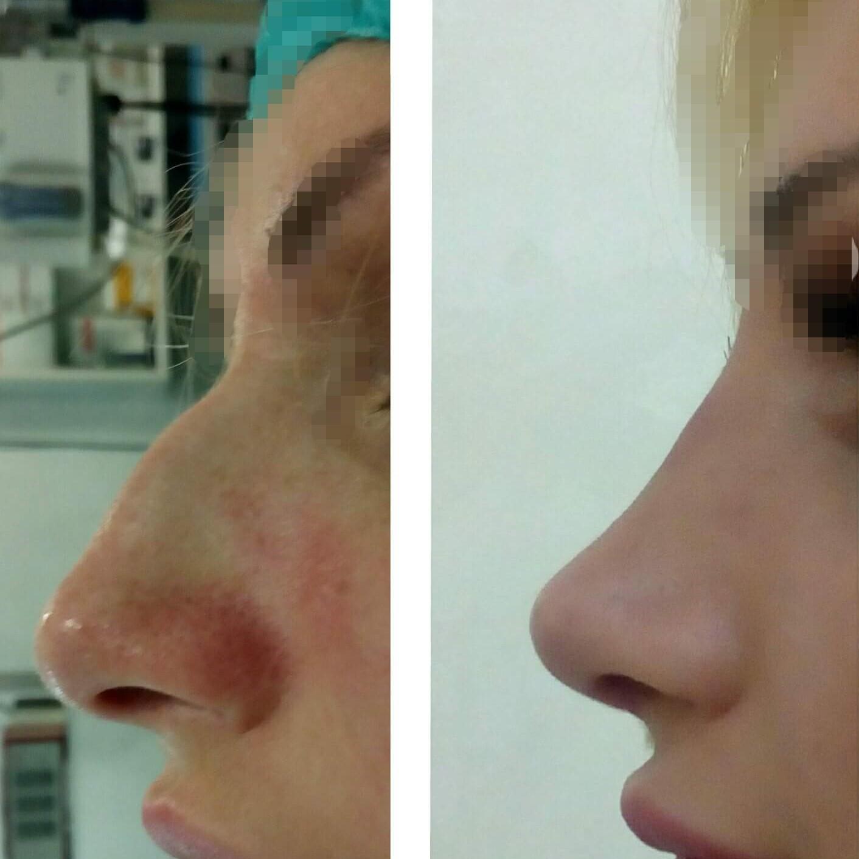 Plastična hirurgija operacija nosa 1