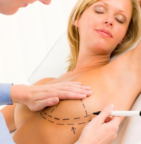 Plastična hirurgija operacije grudi
