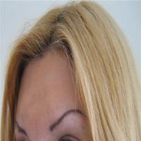 Plastična hirurgija podizanje obrva i čela