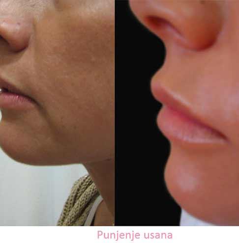 Plastic surgery lip_enlargement or reduction