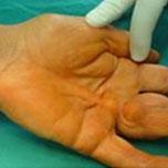 Plastic surgery reconstructive surgery