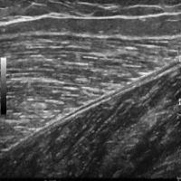Ultrazvuk m tkiva 1