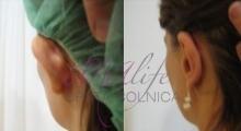 1534502922_plastična hirurgija operacije ušiju galerija 4