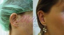 1534502922_plastična hirurgija operacije ušiju galerija 6