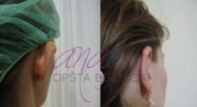 1534502924_plastična hirurgija operacije ušiju galerija 9