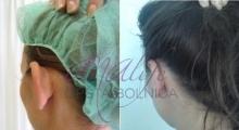 1534502925_plastična hirurgija operacije ušiju galerija 10
